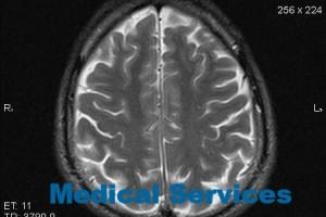 Лечение арахноидальной кисты головного мозга