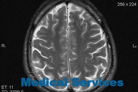 Анализ крови на рак головного мозга в мюнхене Анализ кала форма 219 у Текстильщики