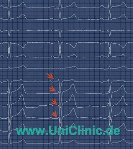 Диагностика для беременных в Германии