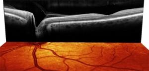 Диагностика сетчатки глаза