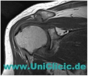 Лечение артроза плеча в Германии