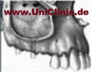 Хирургия черепно-лицевой патологии