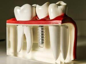 Zahnimplant