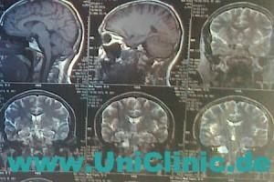 Кистозные заболевания отделов головного мозга